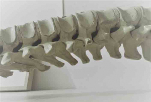Barcelona Spine Institute columna